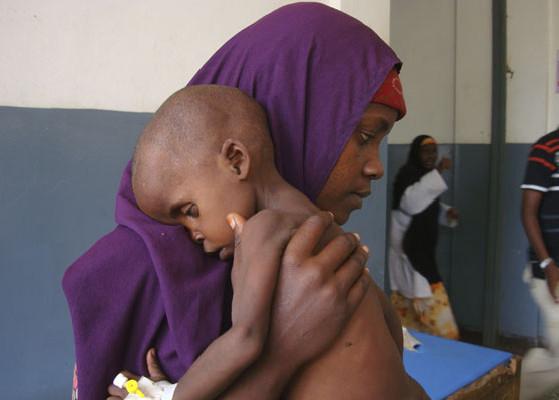 Lul Ibrahim, de dois anos, recebe tratamento médico por desnutrição em um hospital de Mogadício, Somália. Crédito: Farah Abdi Warsameh