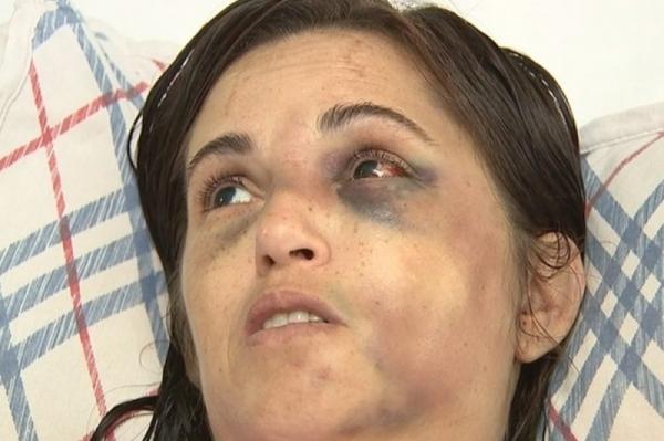 Sandra Almeida apanhou do marido e ficou com traumas no rosto