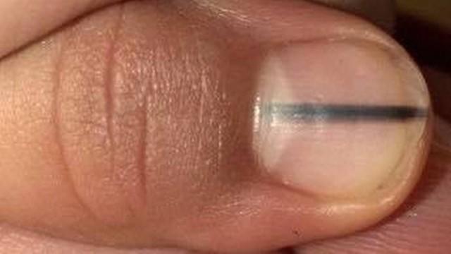 Mulher descobriu câncer após alerta de manicure
