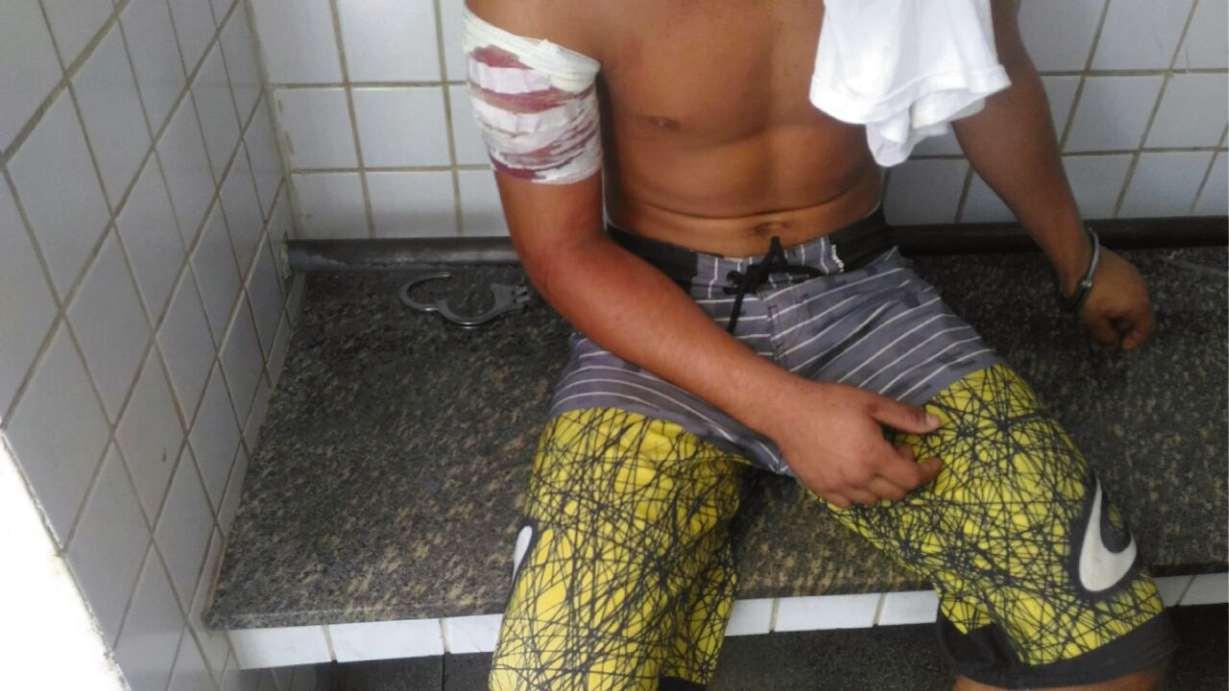 Adolescente de 17 anos foi baleado no braço direito ao tentar assaltar PM na rodovia. Crédito: Ruhani Maia