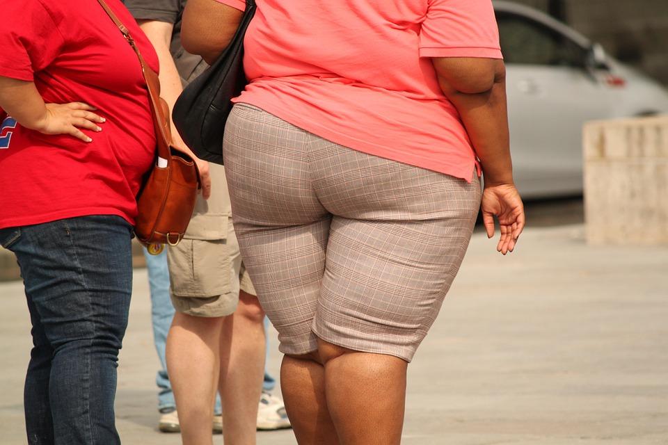 Obesidade. Crédito: Reprodução/Pixabay