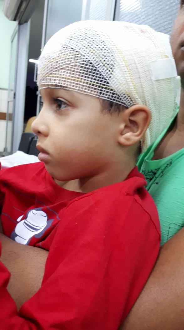 Criança foi atacada por pitbull em Cariacica . Crédito: Iony Lopes