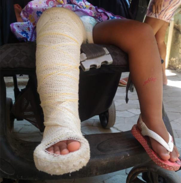 Menina de dois anos, teve a perna direita imobilizada. Crédito: Mayra Bandeira