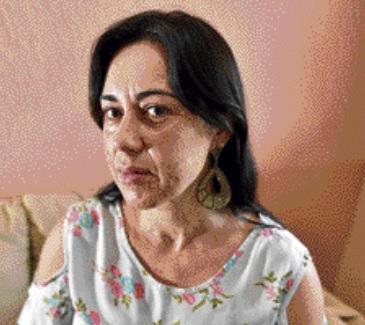 Aos 43 anos, Rosângela vem sofrendo com acne. Crédito: Marcelo Prest | GZ