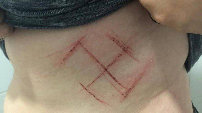 Jovem de 19 anos, moradora de Porto Alegre, foi marcada com um canivete. Crédito: Reprodução