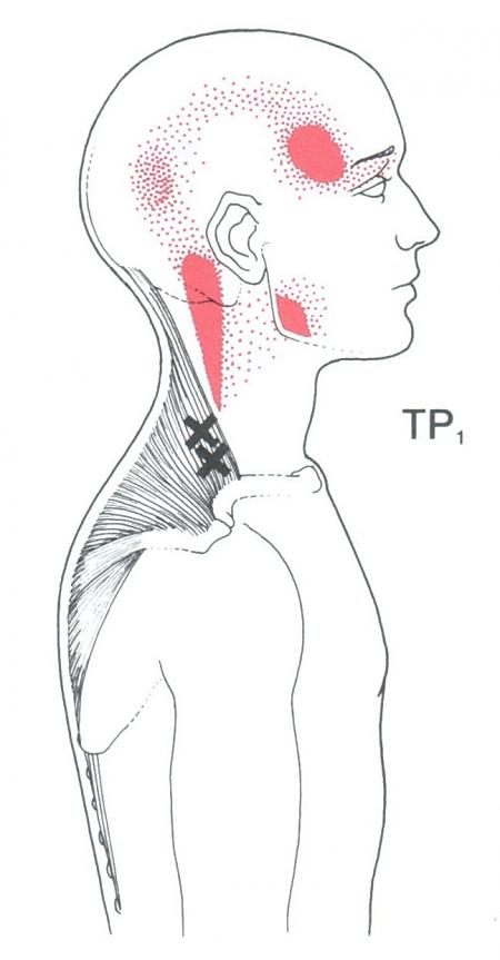 Preferência Agulhamento a seco: conheça a técnica eficaz para dores musculares  CW29